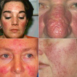 Признаки и симптомы демодекоза