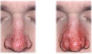 Ринофима при демодекозе
