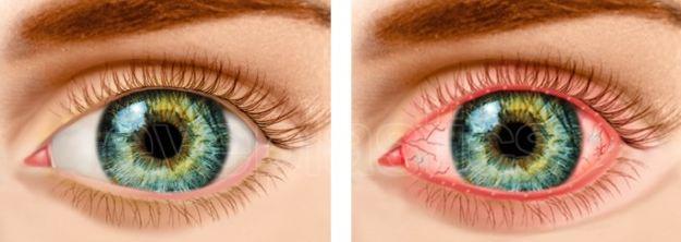 Без лечения демодекоз глаз
