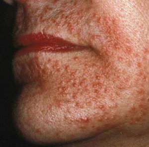 Как выглядит демодекоз на лице: фото демодекоза