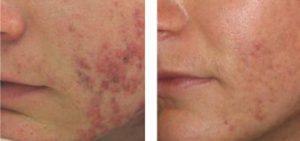 Фото до и после лечения демодекоза
