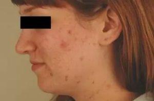 Фото до лечения демодекоза