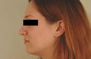 Фото после лечения демодекоза