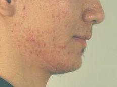 Отзывы о лечении демодекоза