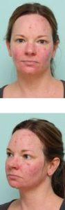 Симптомы демодекоза на лице