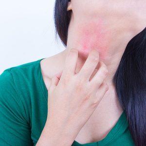 Симптом демодекоза зуд