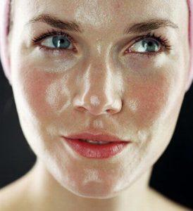 жирная кожа - симптом демодекоза